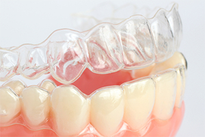 Orthodontics in Lawrenceville