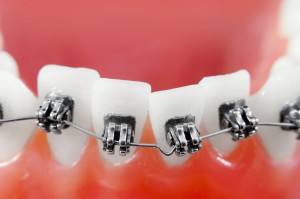 Dental braces in Lawrenceville