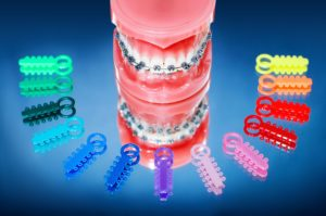 Orthodontic Evaluation in Morrow