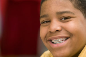 Kids Braces in Lawrenceville