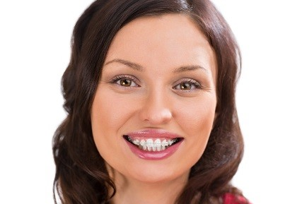 Adult Orthodontics in Woodhaven Downs